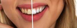 Small thumb cosmetic dentistry in melbourne