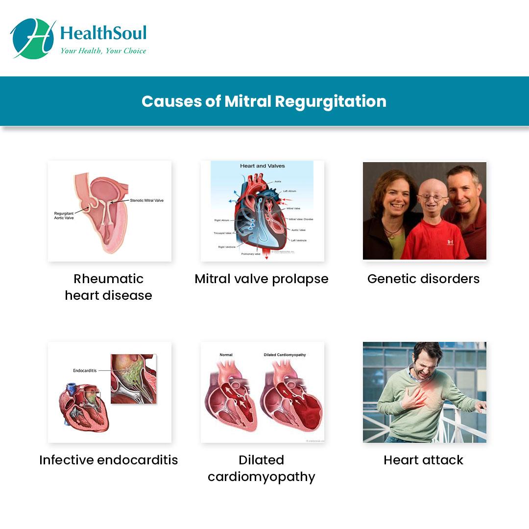 Causes of Mitral Regurgitation