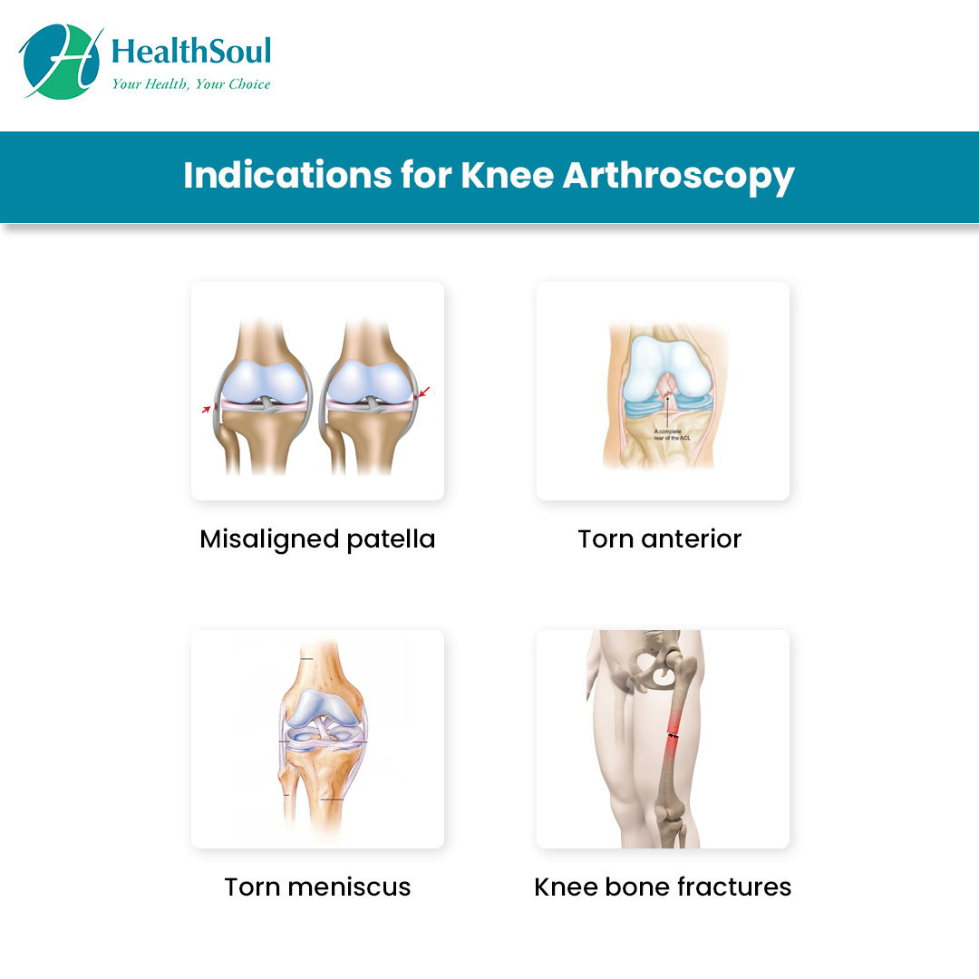 Indications of Knee Arthroscopy