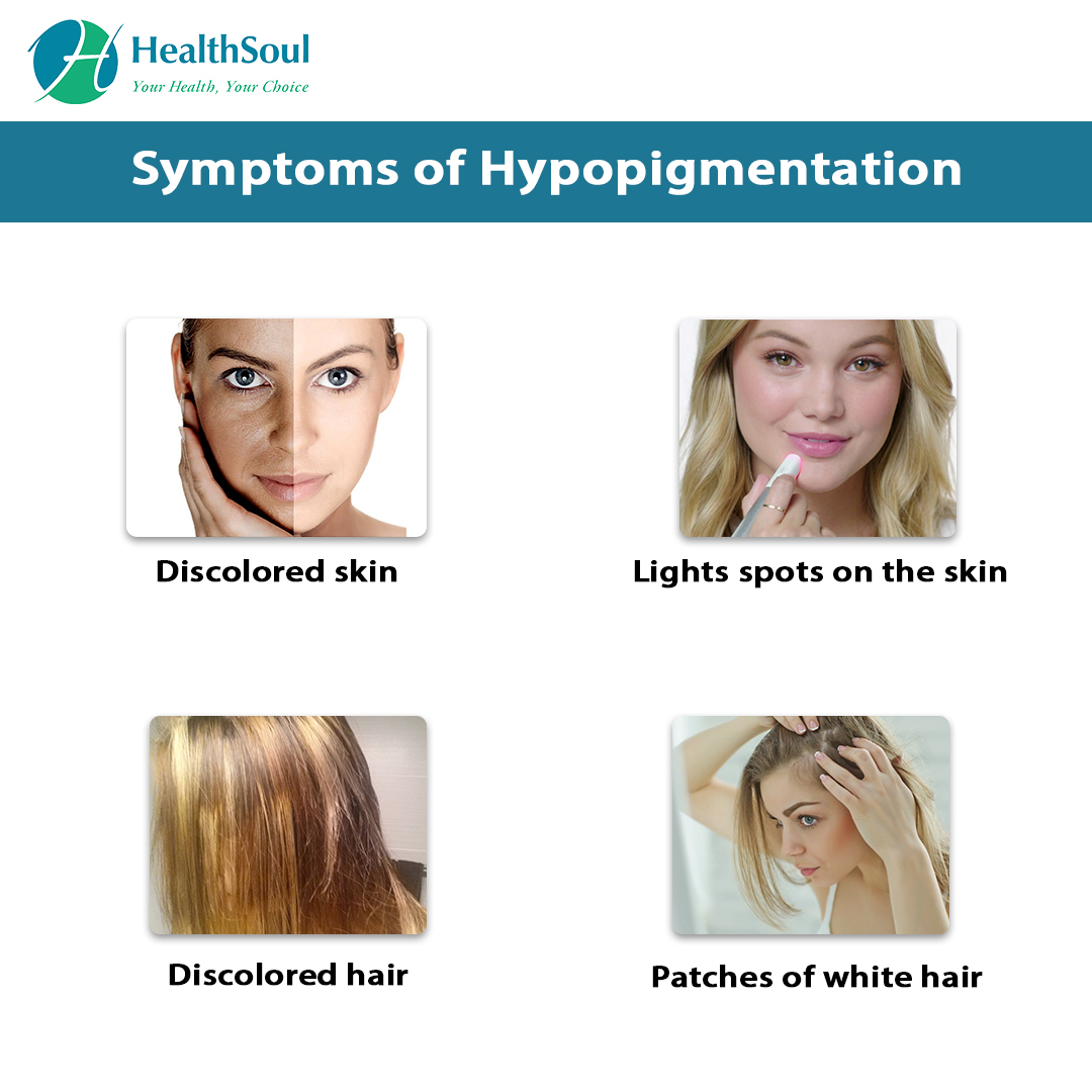 Symptoms of Hypopigmentation