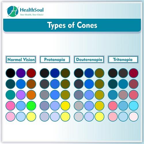 Types of Cones | HealthSoul