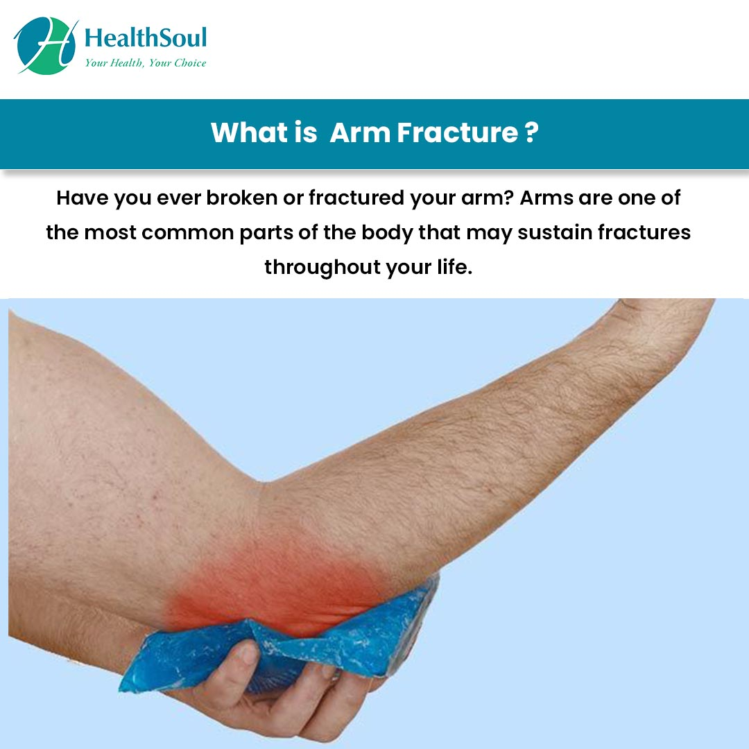 What is Arm Fracture?