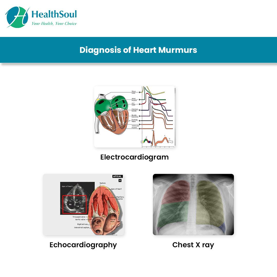 Heart Murmur Diagnosis