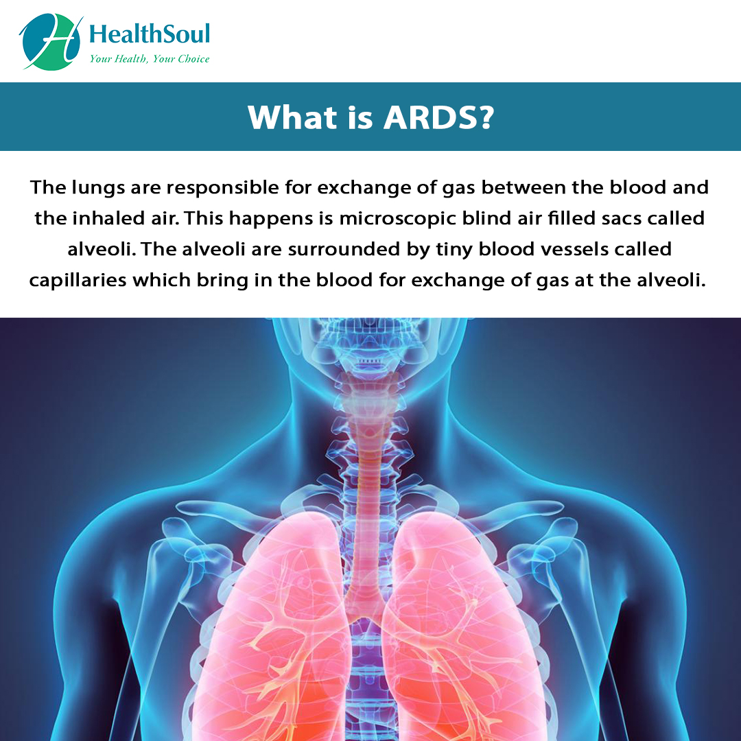 What is ARDS?