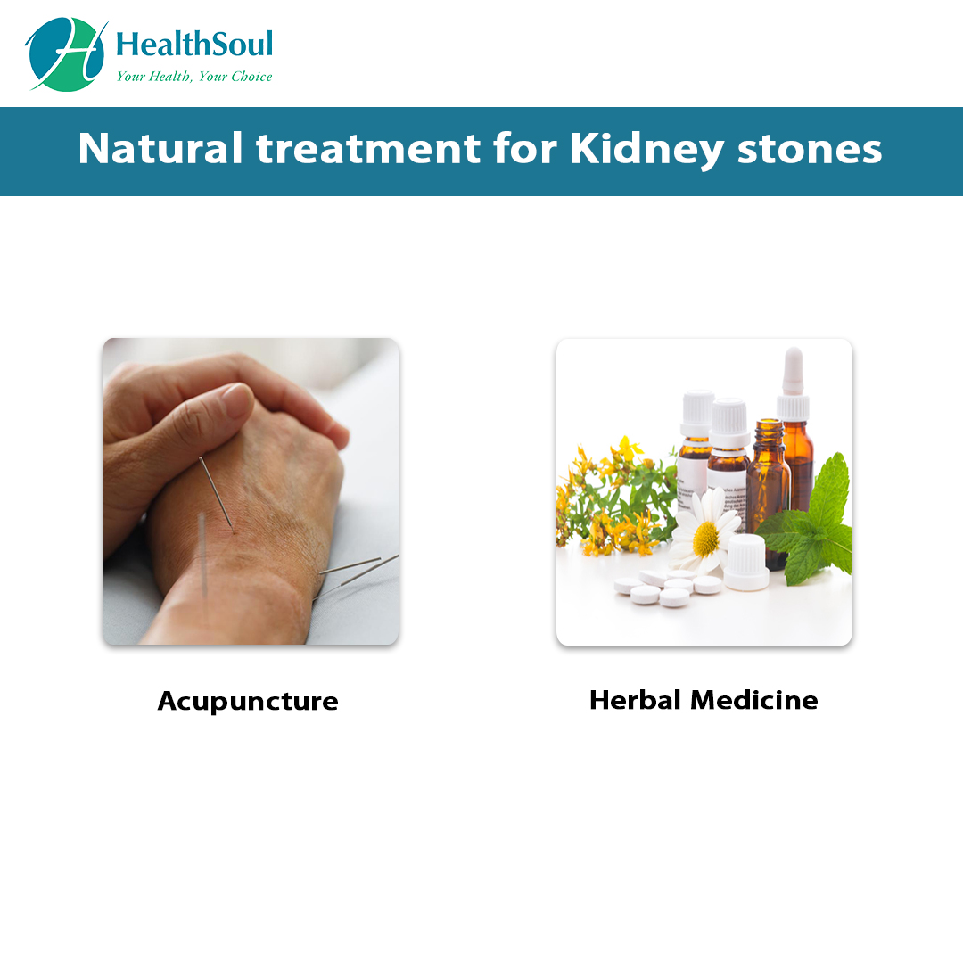 Natural Treatment for Kidney Stones