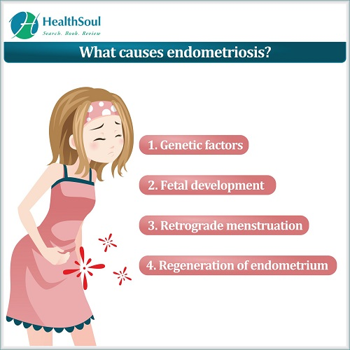 What Causes Endometriosis | HealthSoul
