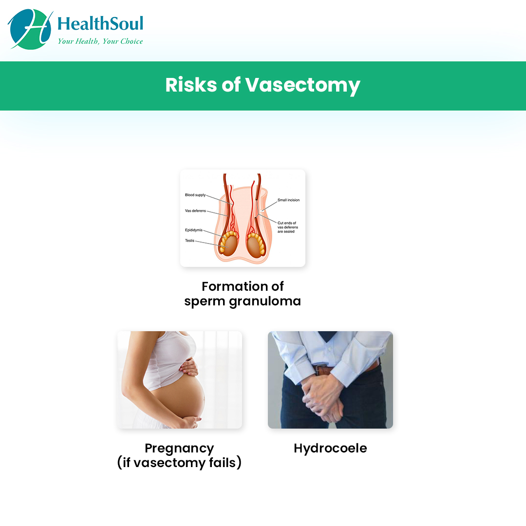 Risks of Vasectomy