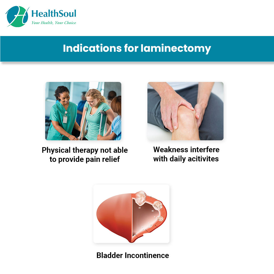 Indications for laminectomy