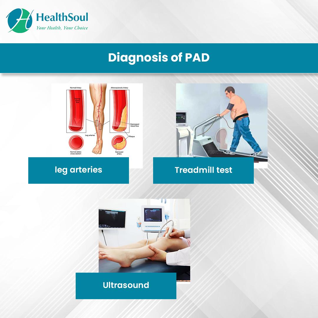 Diagnosis of PAD