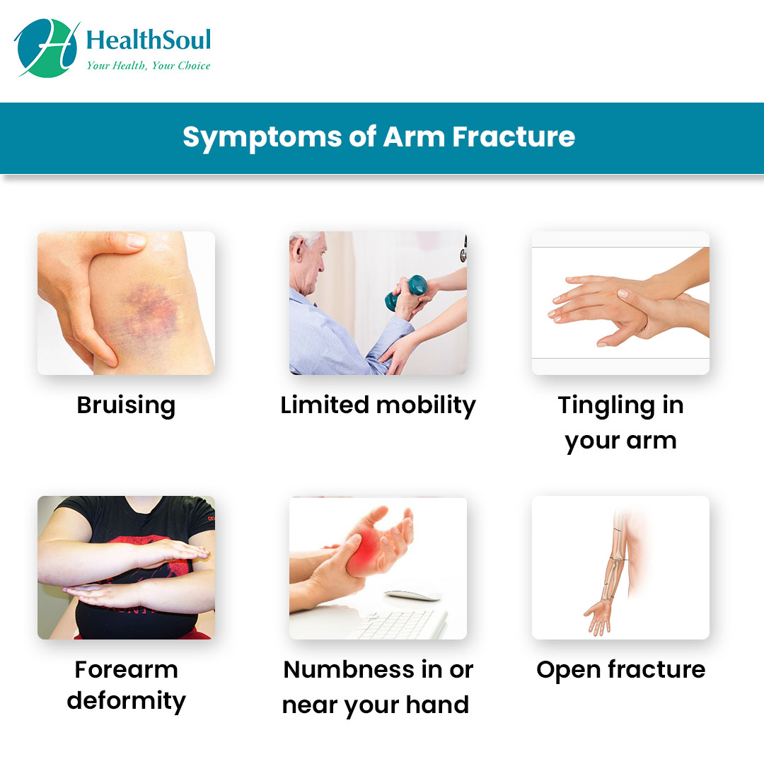 Symptoms of Arm Fracture