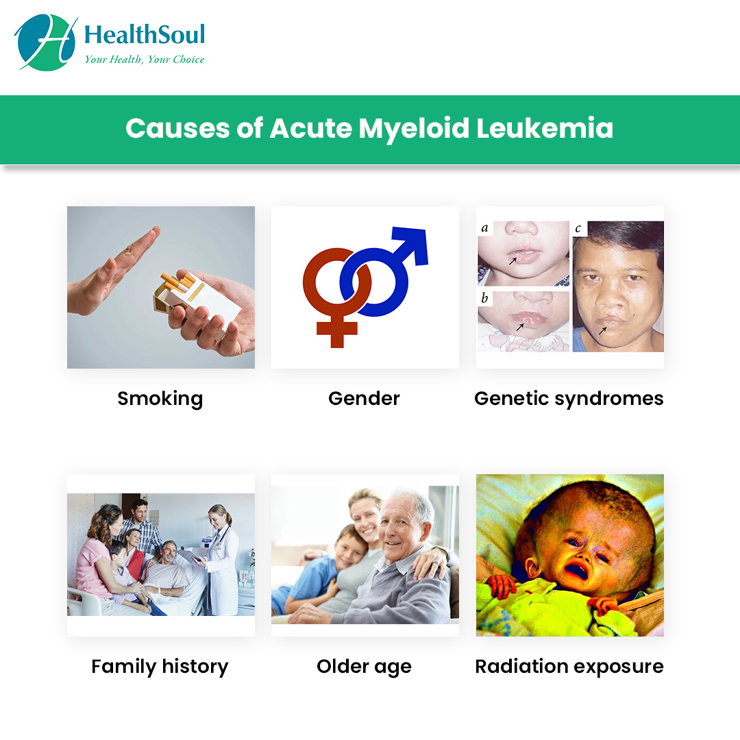 Acute Myeloid Leukemia: Symptoms and Treatment | Hematology