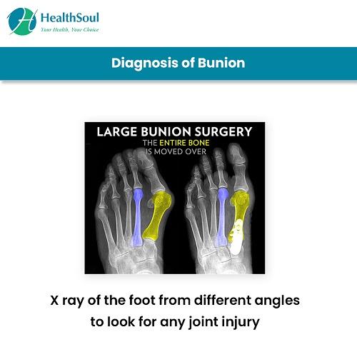 Diagnosis of Bunion | HealthSoul