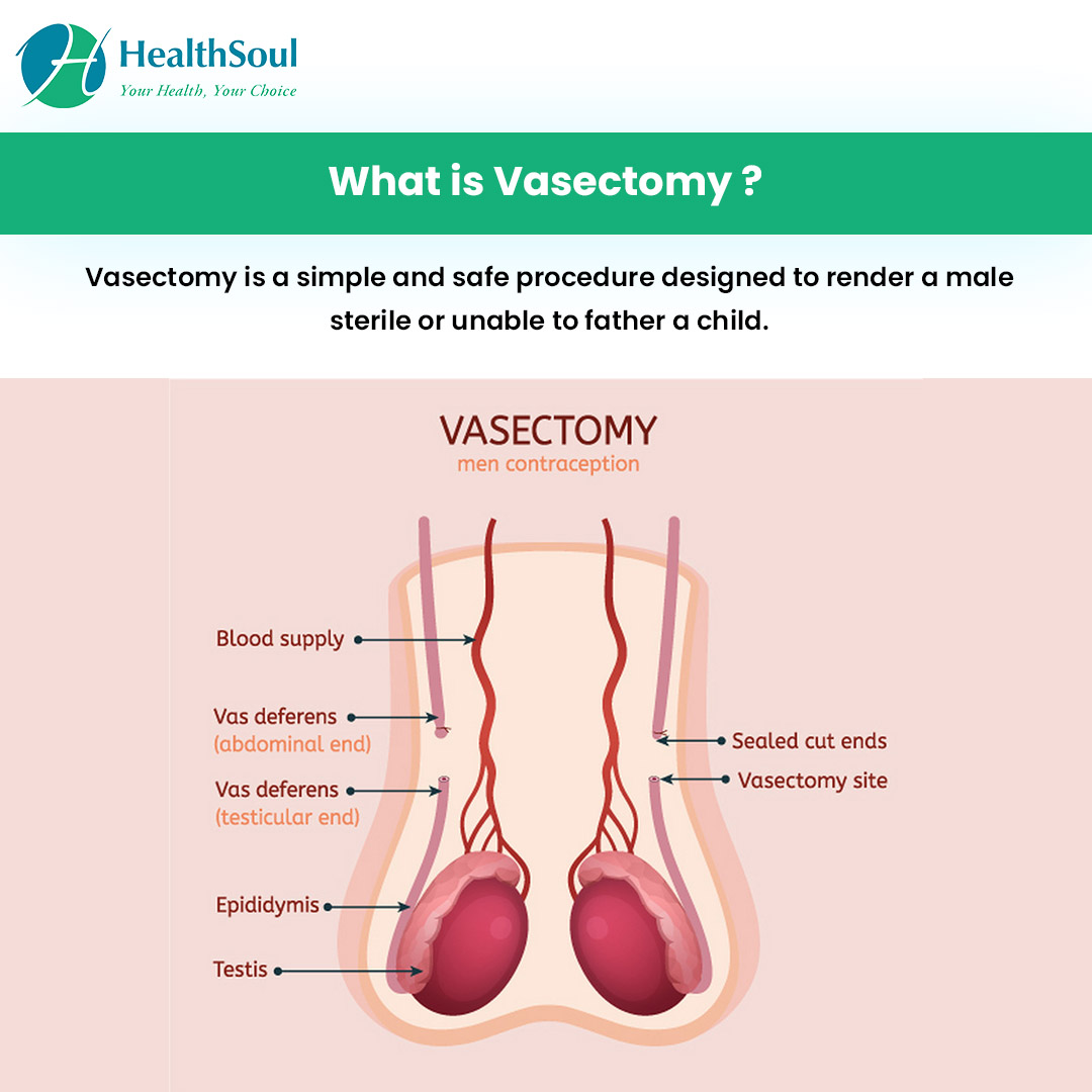 What is Vasectomy?