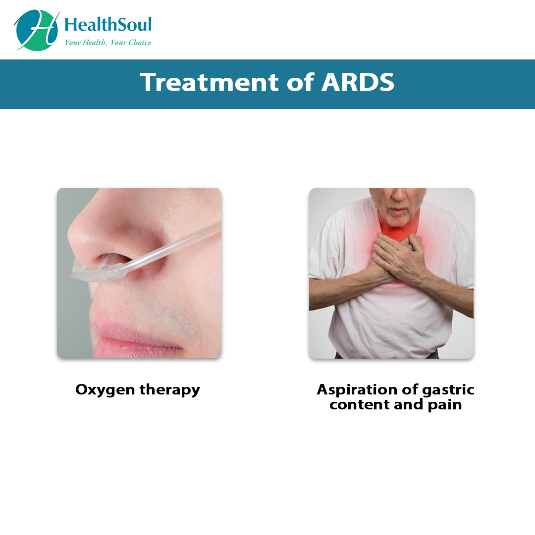 Treatment of ARDS
