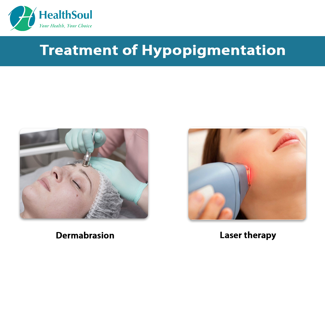 Treatment of Hypopigmentation