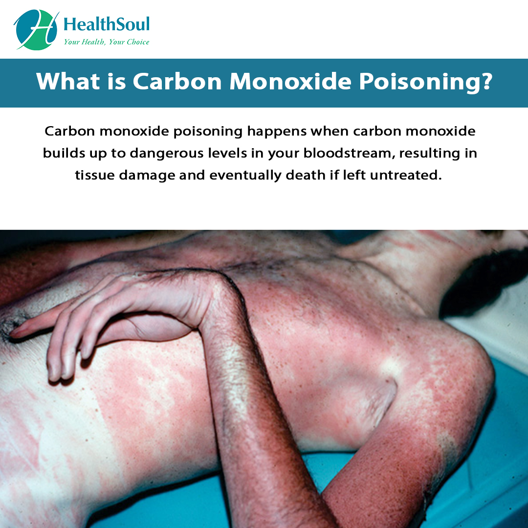 What is carbon monoxide poisoning?