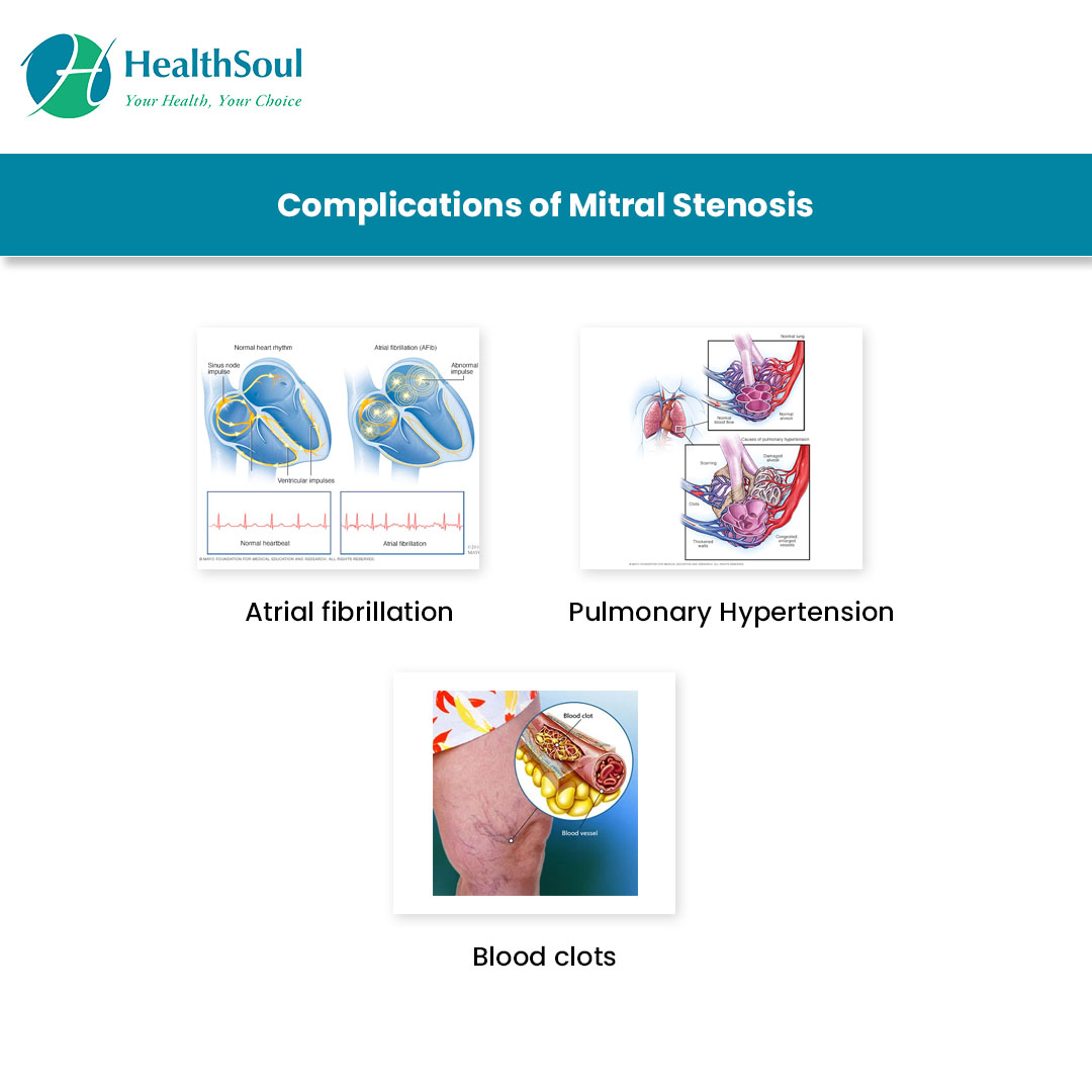 Complications of Mitral Stenosis
