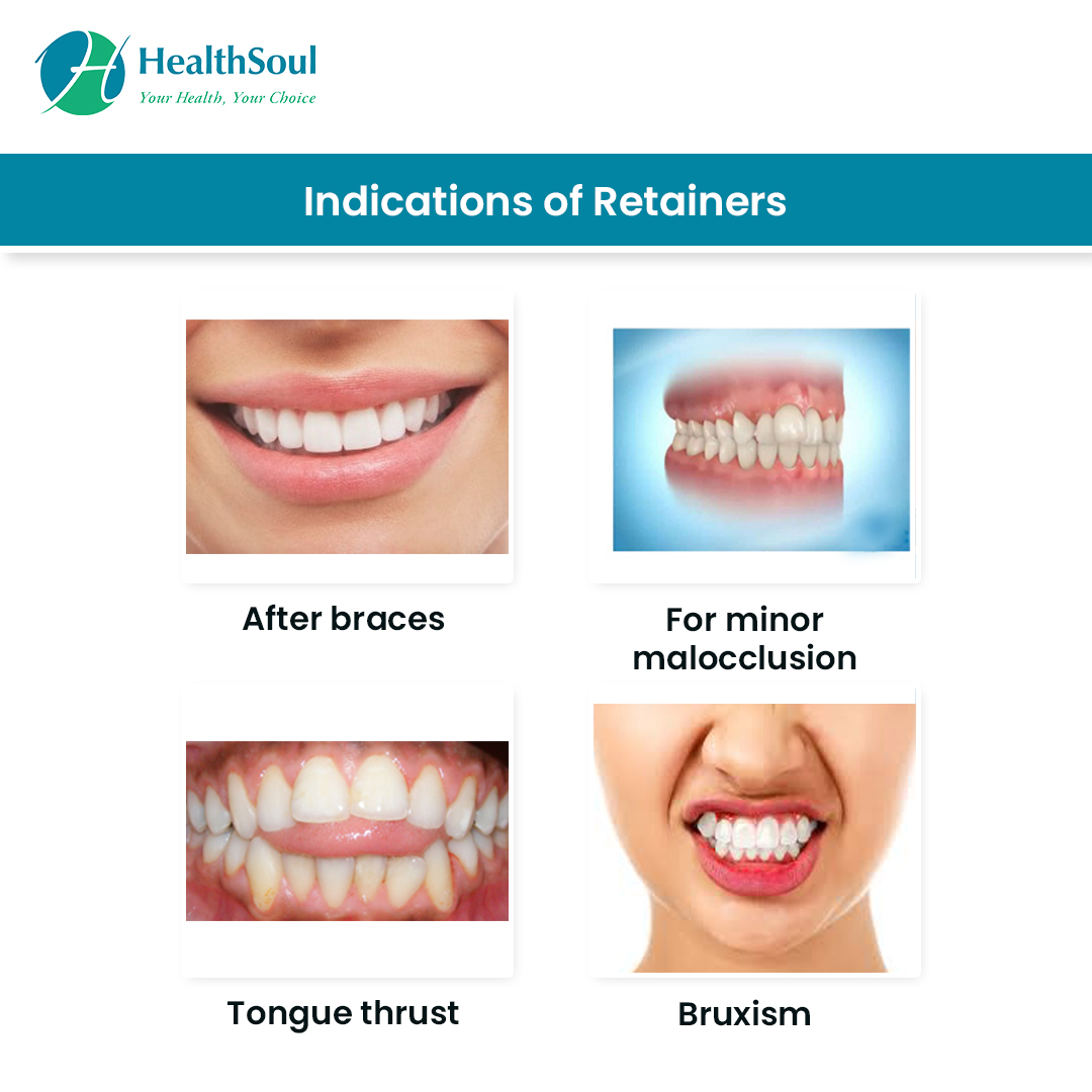 Indications of Dental Retainers