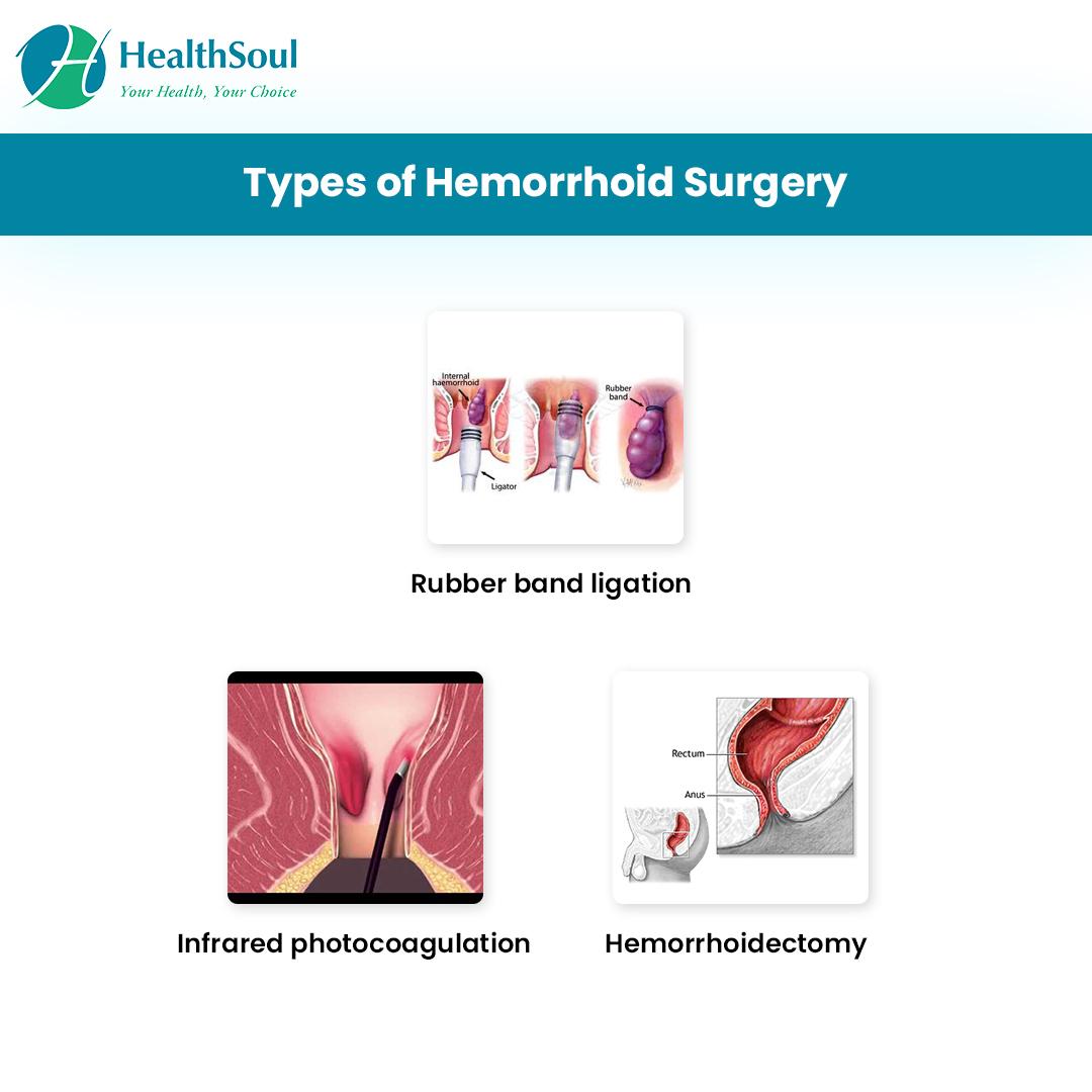 Types of Hemorrhoid Surgery