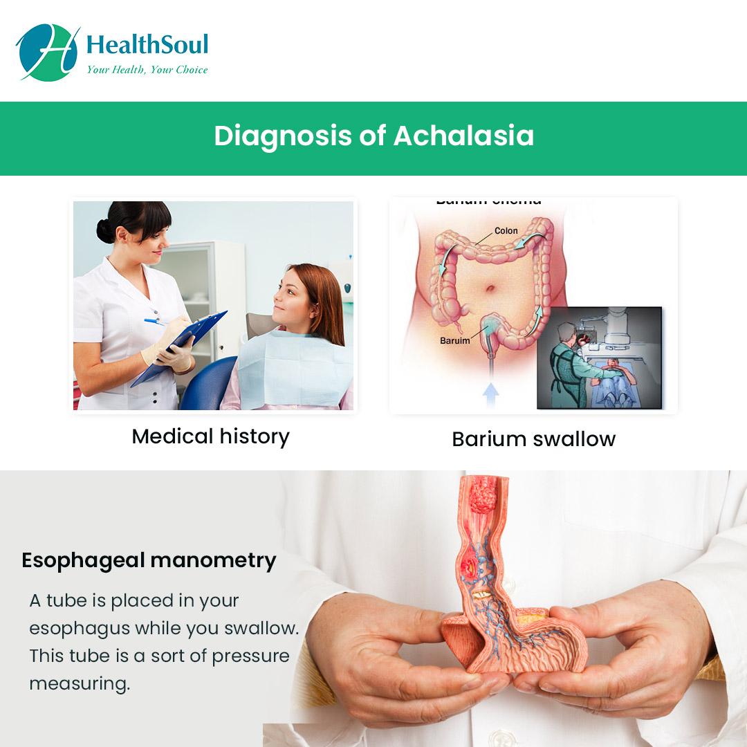 Diagnosis of Achalasia