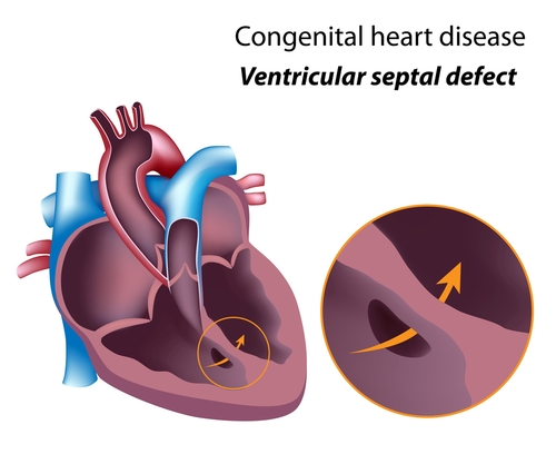 Ventricular Septal Detect