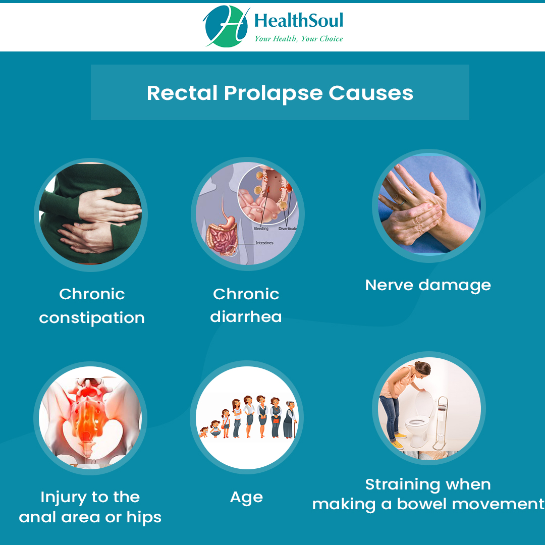 Rectal Prolapse Symptoms, Diagnosis And Treatment -8802