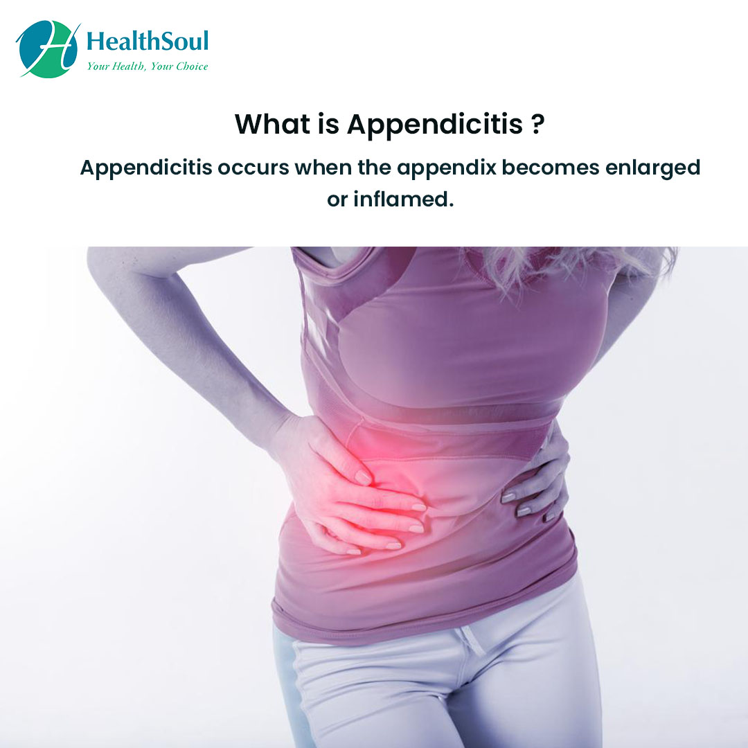What is Appendicitis?