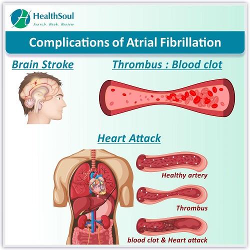 Complications of Atrial Fibrillation | HealthSoul