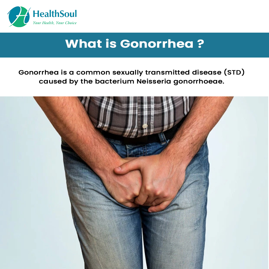 What is Gonorrhea?