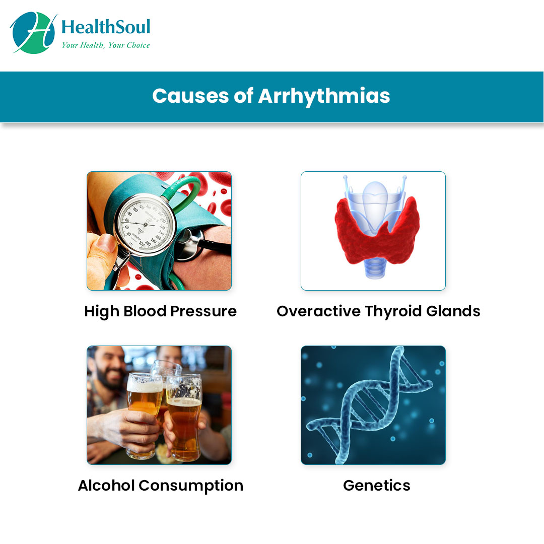 Causes of Arrhythmias