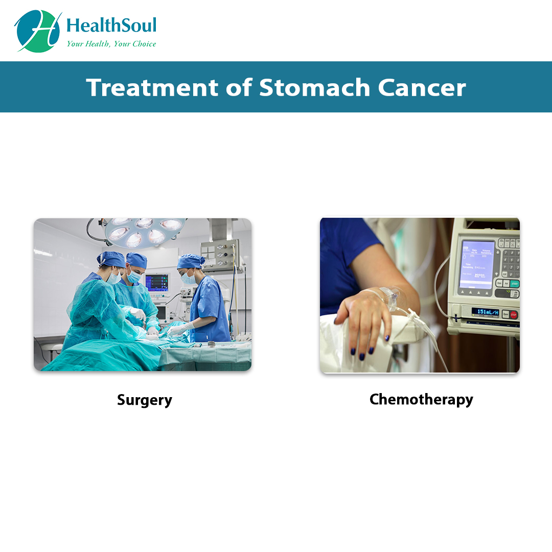 Treatment of Stomach Cancer | HealthSoul