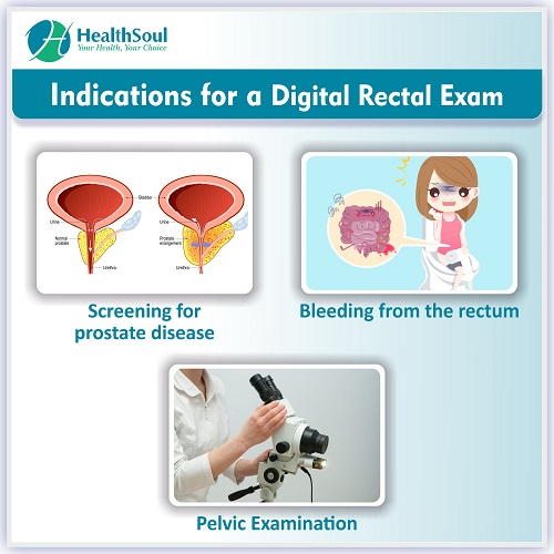 Indications for a digital Rectal Exam | HealthSoul