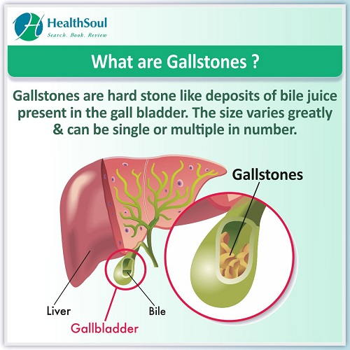 What are Gallstones? | HealthSoul