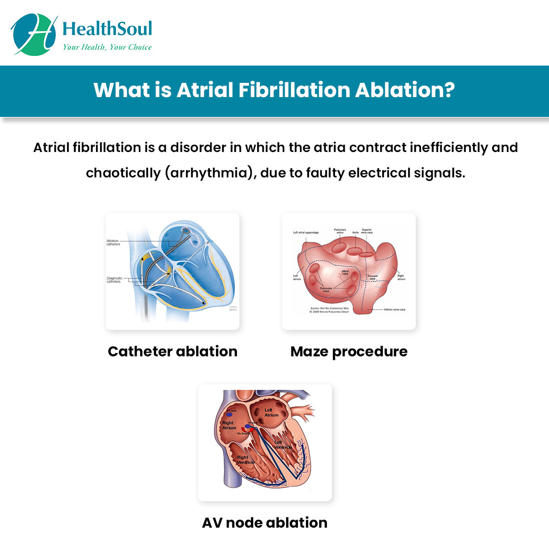 What is Atrial Fibrillation Ablation?