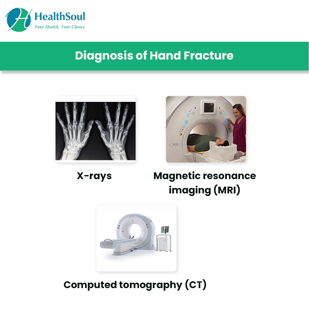 Diagnosis of Hand Fracture