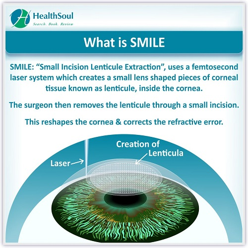 What is Smile? | HealthSoul