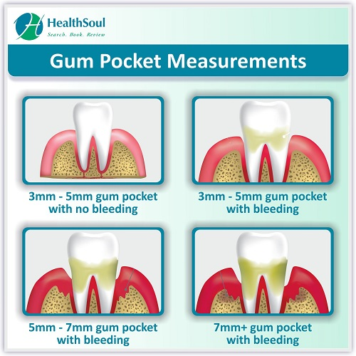 Gum Pocket Measurements | HealthSoul