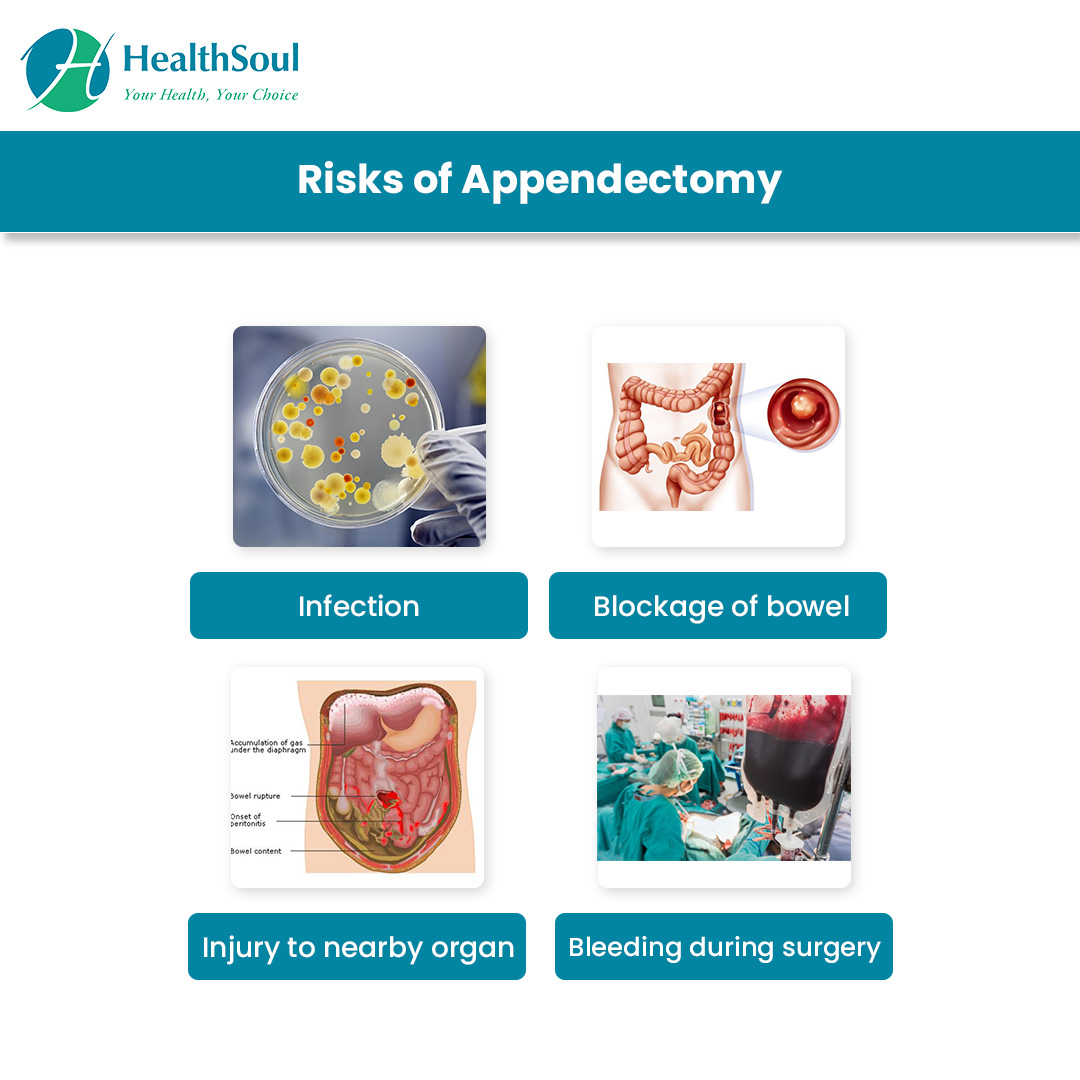 Risk of Appendectomy