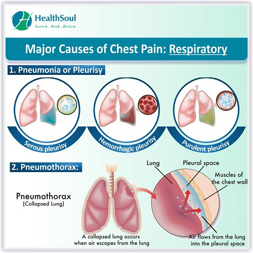 Maor Causes of Chest Pain: Respiratory | HealthSoul