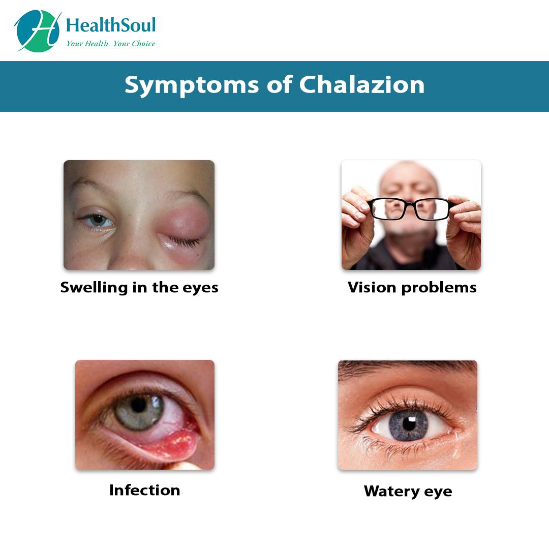 Symptoms of Chalazion