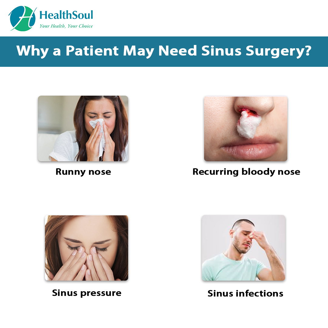 Why a patient may need Sinus Surgery?