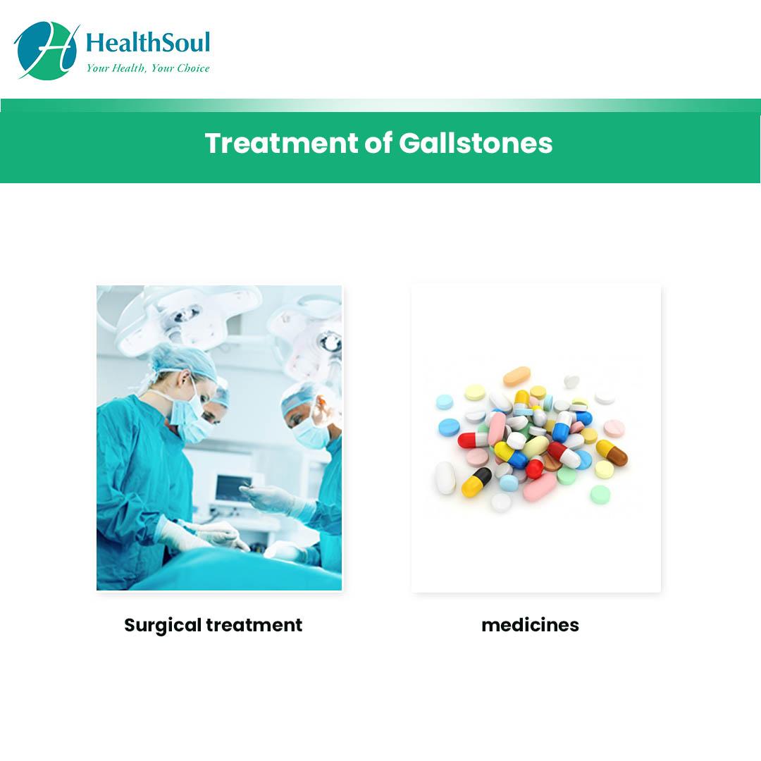 Treatment of Gallstones | HealthSoul