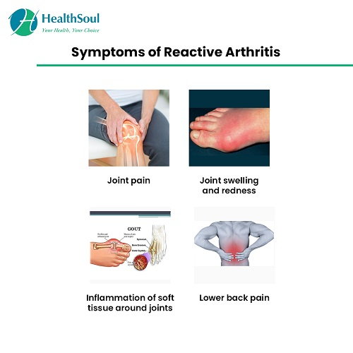 Symptoms of Reactive Arthritis | HealthSoul