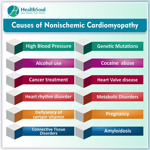 Causes of Nonischemic Cardiomyopathy | HealthSoul