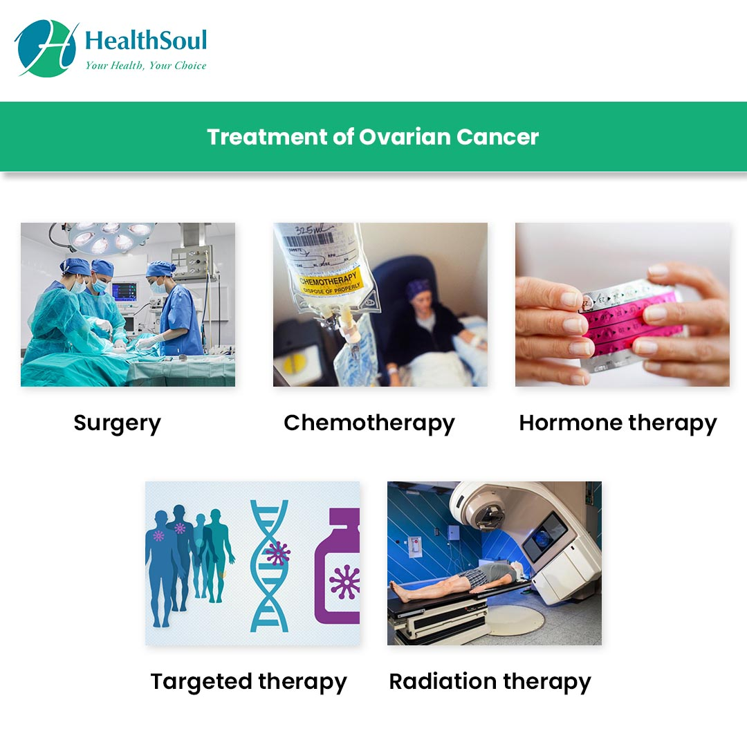 Treatment of Ovarian Cancer