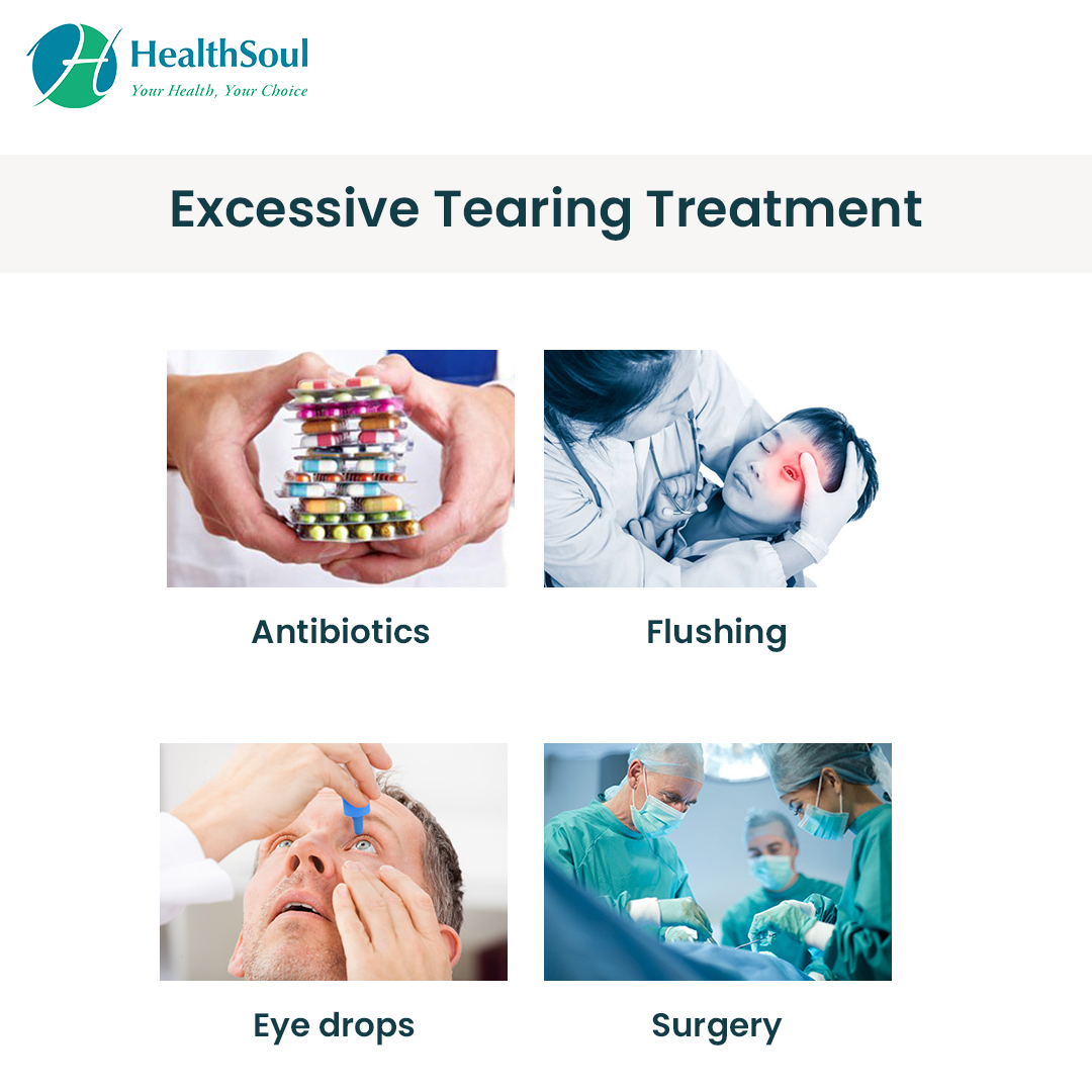 Excessive Tearing Treatment