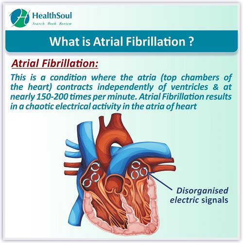 What is Atrial Fibrillation? | HealthSoul