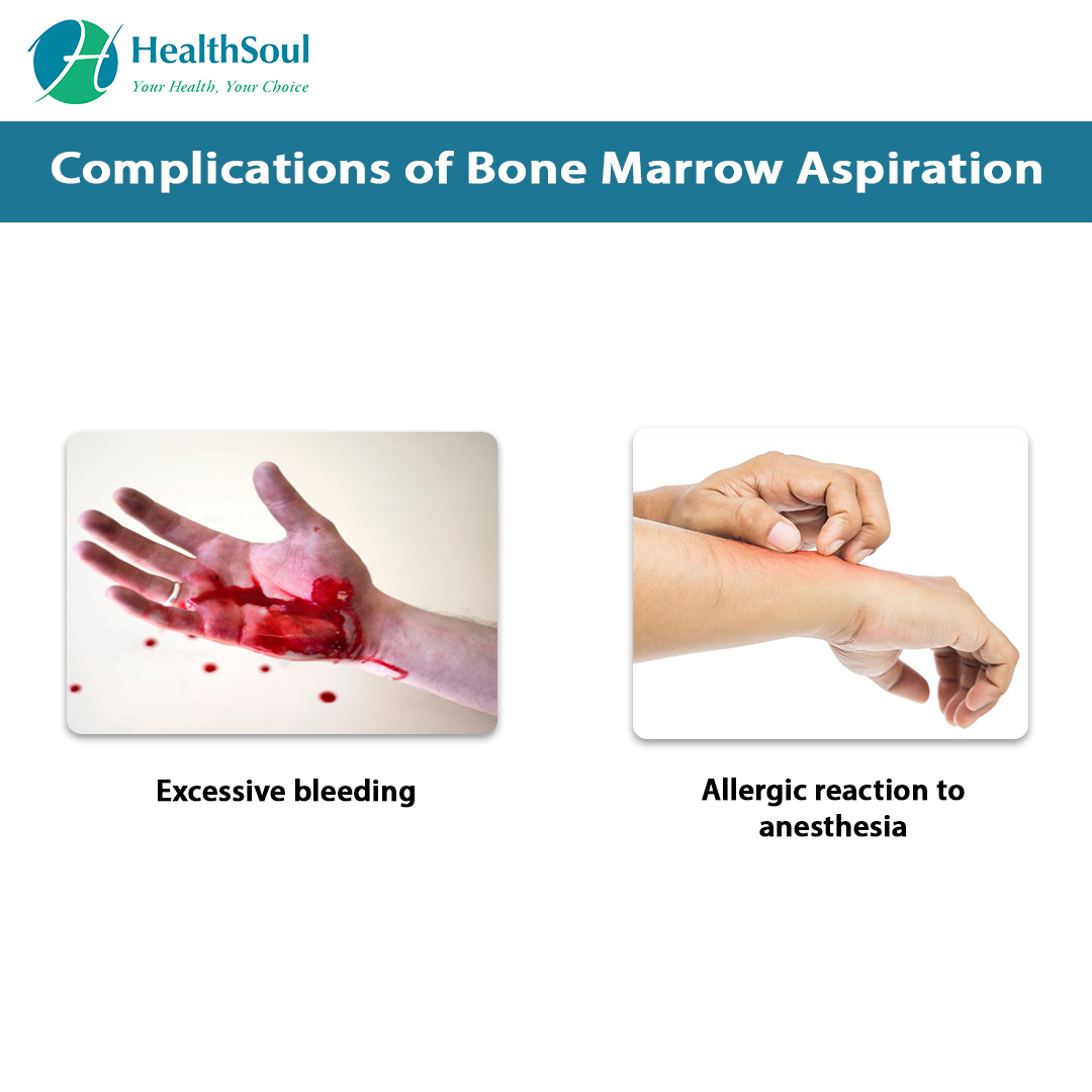 Complications of Bone Marrow Aspiration