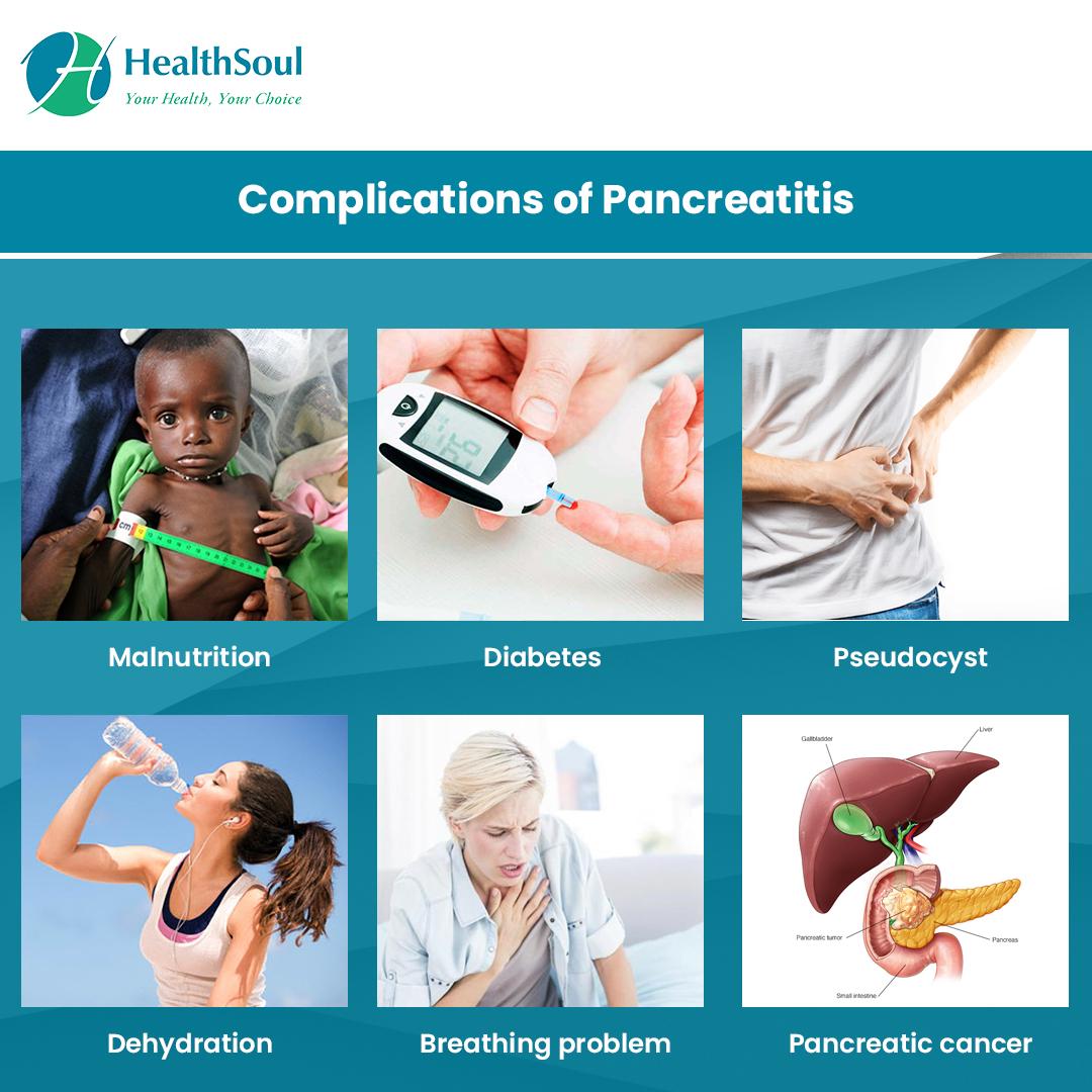 Complications of Pancreatitis