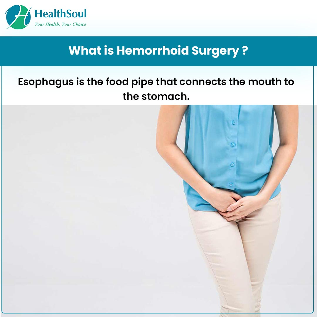 What is Hemorrhoid Surgery?